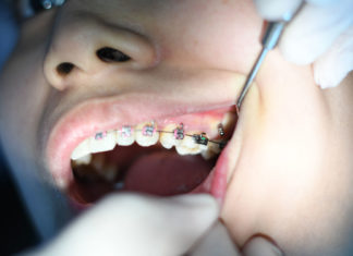 Now-It's-Proper-Time-to-Straighten-Your-Teeth-on-civicdaily